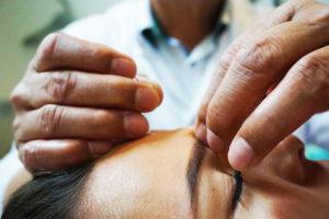 Over acupunctuur