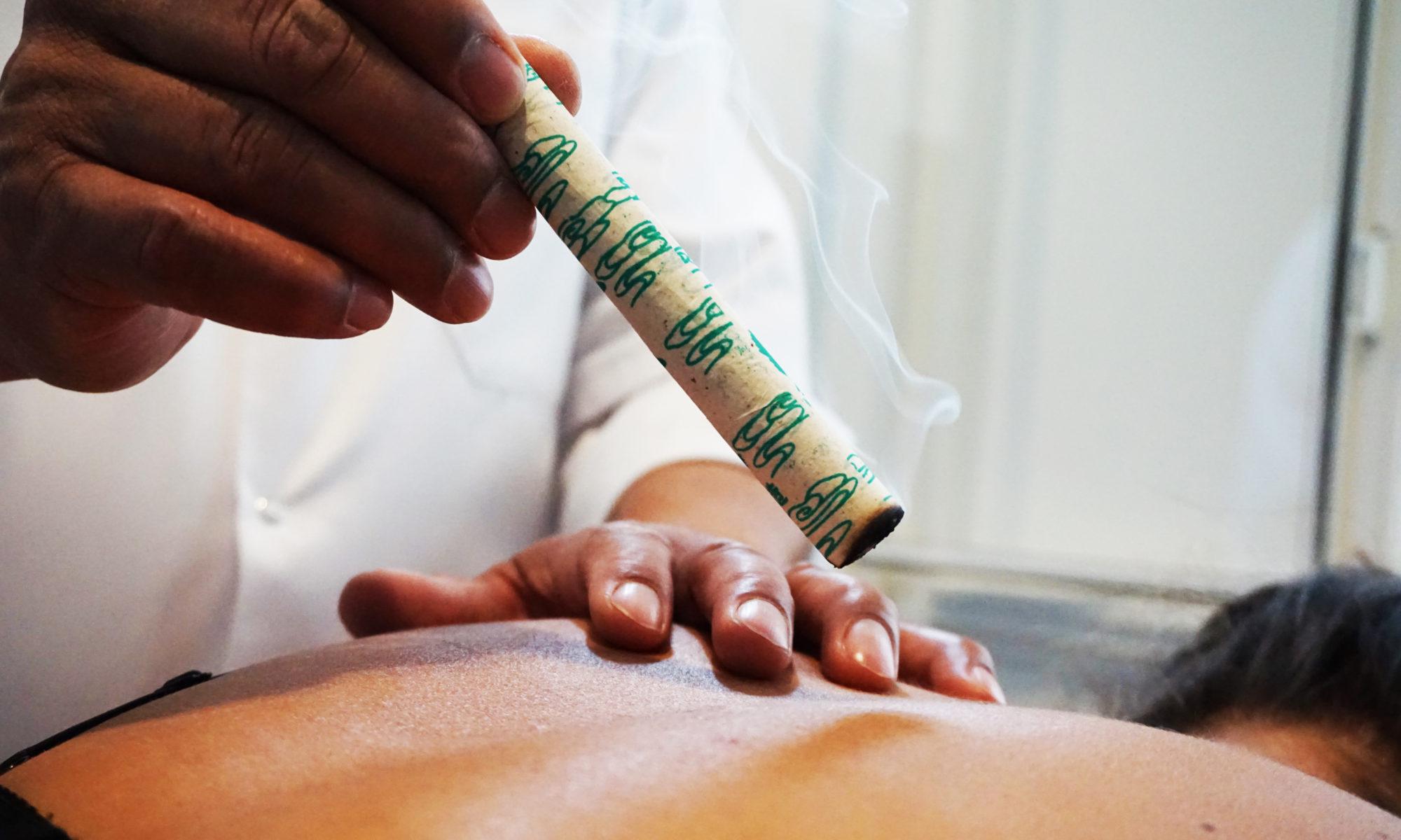 Moxa therapie acupunctuur Jim Hubner